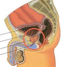 Prosztata népek classification of prostate cancer